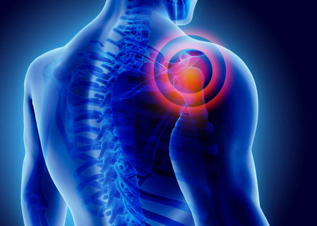 A picture depicting shoulder pain from not bench pressing  properly.