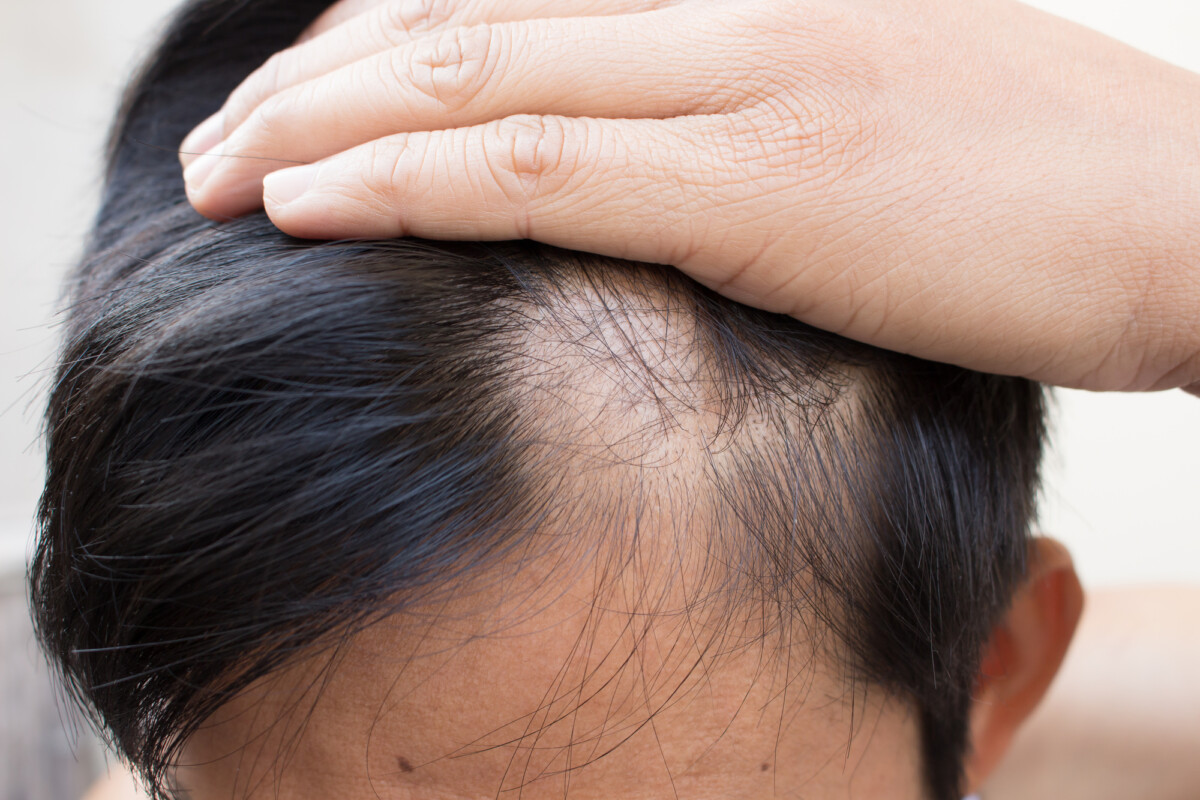 A man looking at his scalp trying to figure out if his hair iss thinning due to protein supplementation