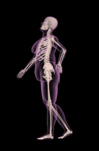 overweight female shown as an xray showing how fat burners can change body composition